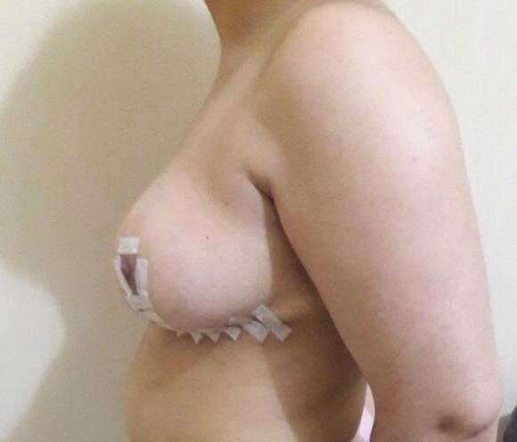 sein-gauche-apres-réduction-mammaire-maroc