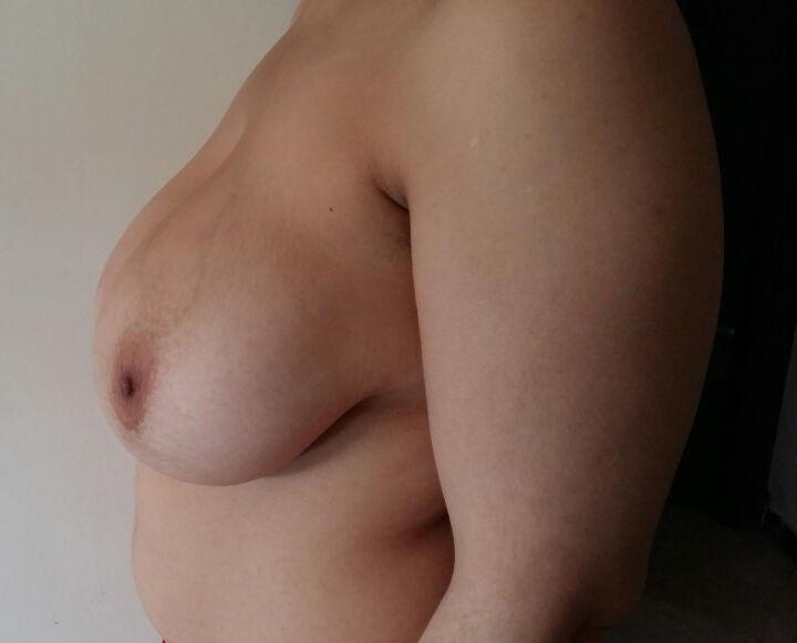 sein-gauche-avant-réduction-mammaire