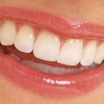 Les aliments pour renforcer vos dents et éviter l'érosion de l'émail dentaire